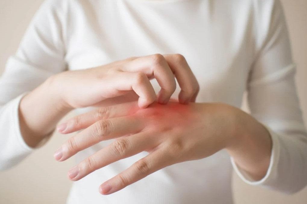 Penyebab Tangan Gatal dan Bengkak