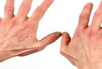 Tips Jitu Mengatasi Alergi Dengan Mudah