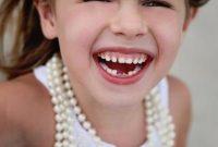 Cara Mencegah Gigi Berlubang pada Anak